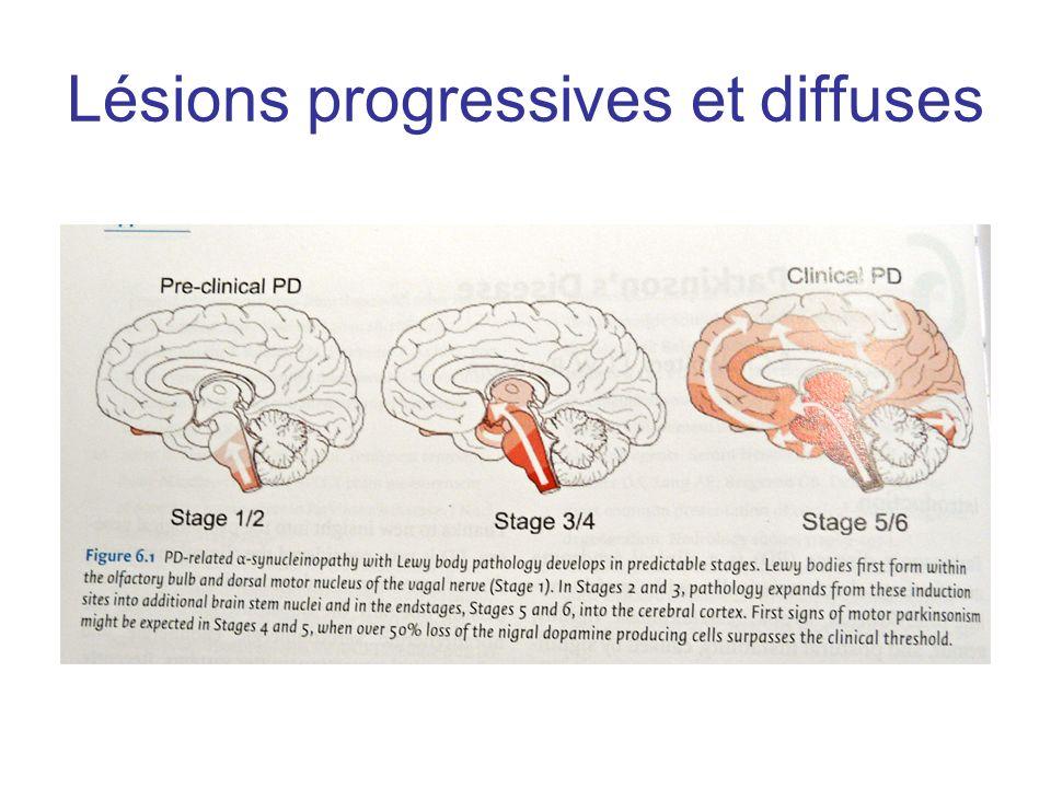 Lésions progressives et diffuses
