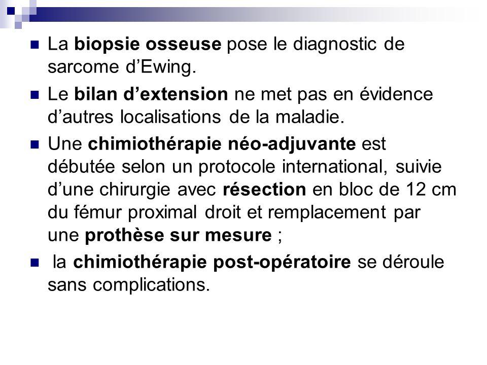 La biopsie osseuse pose le diagnostic de sarcome d'Ewing.