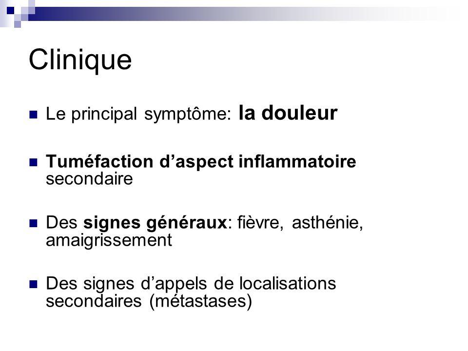 Clinique Le principal symptôme: la douleur