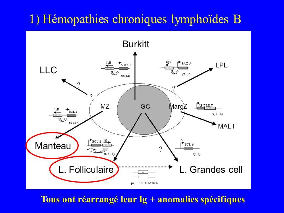 1) Hémopathies chroniques lymphoïdes B