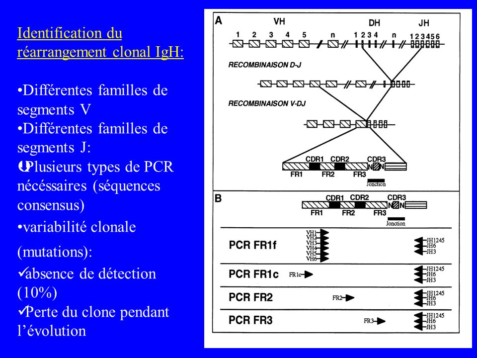 Identification du réarrangement clonal IgH: