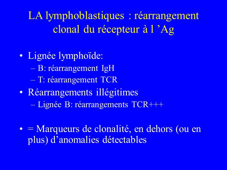 LA lymphoblastiques : réarrangement clonal du récepteur à l 'Ag