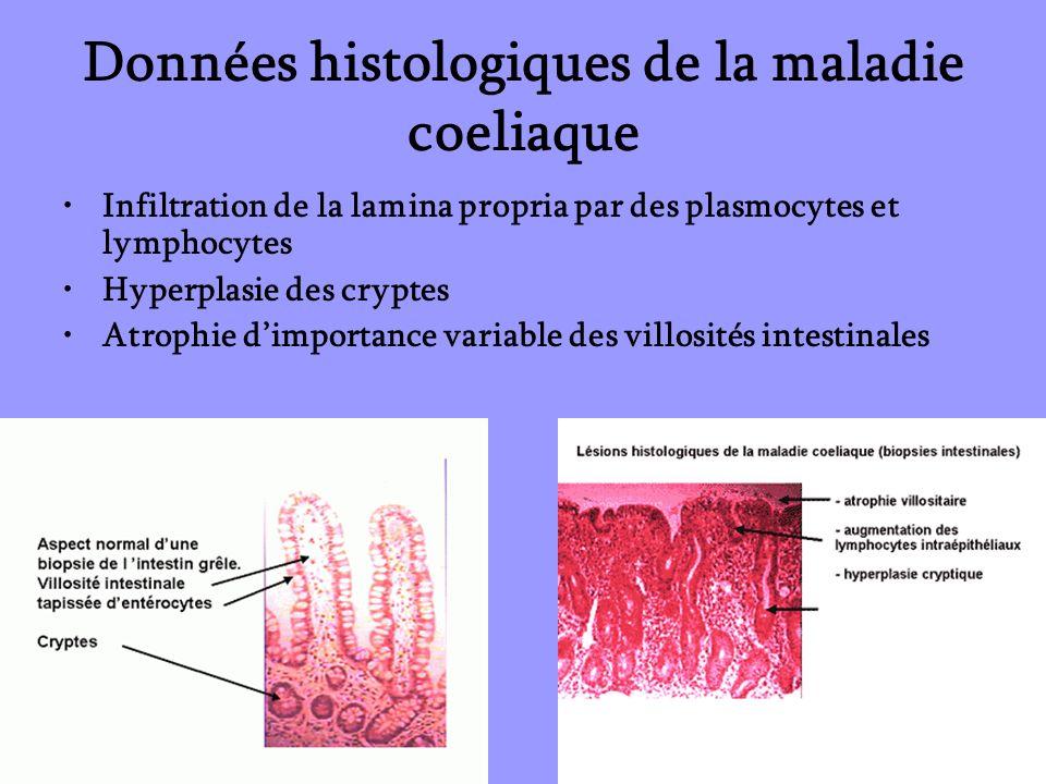 Données histologiques de la maladie coeliaque