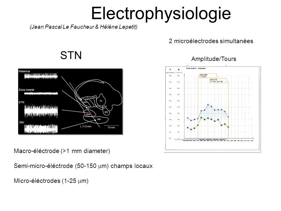 Electrophysiologie STN 2 microélectrodes simultanées Amplitude/Tours