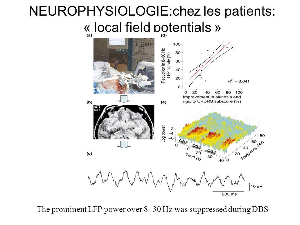 NEUROPHYSIOLOGIE:chez les patients: « local field potentials »