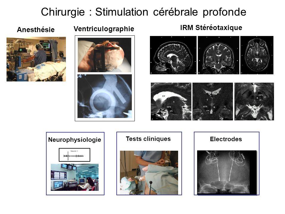 Chirurgie : Stimulation cérébrale profonde