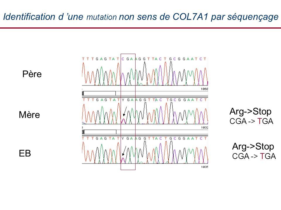 Identification d 'une mutation non sens de COL7A1 par séquençage