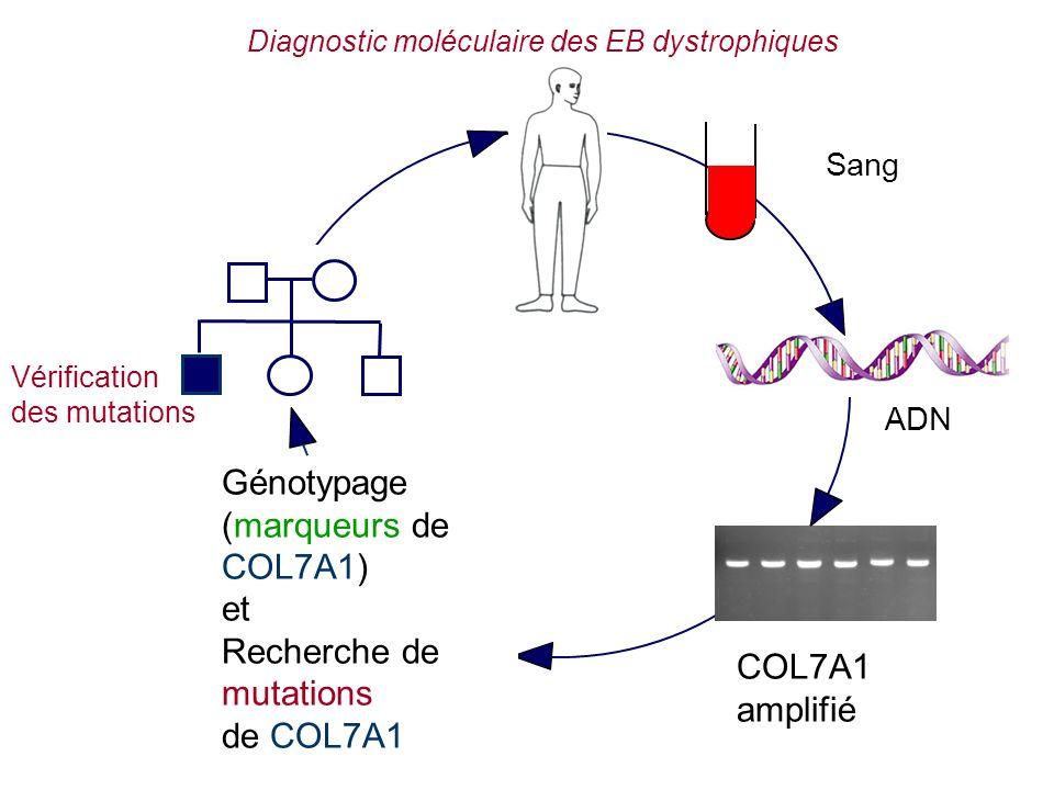 Diagnostic moléculaire des EB dystrophiques