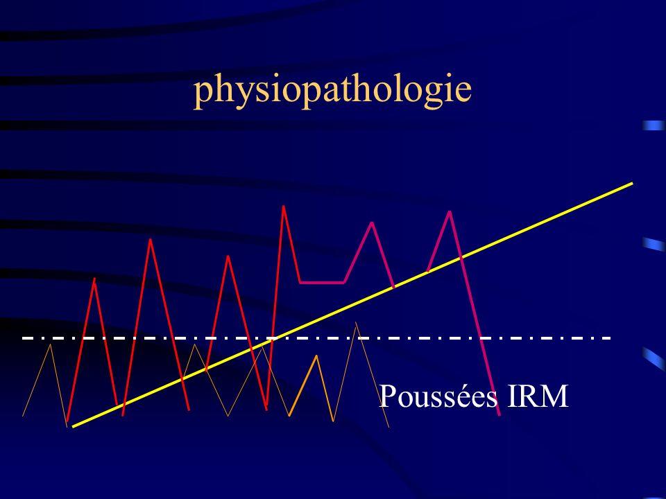 physiopathologie Poussées IRM