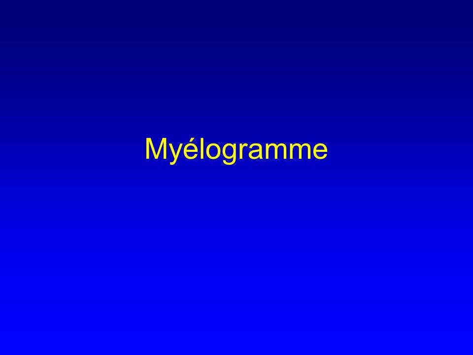 Myélogramme