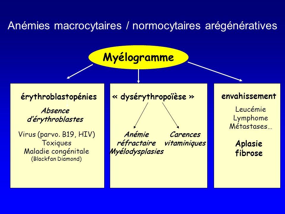Anémies macrocytaires / normocytaires arégénératives