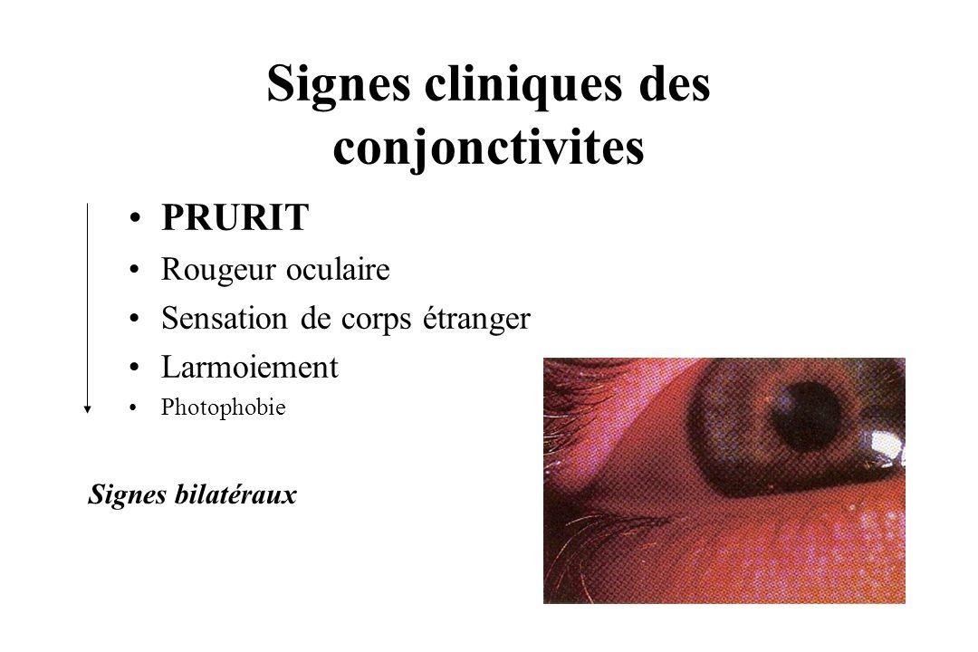 Signes cliniques des conjonctivites