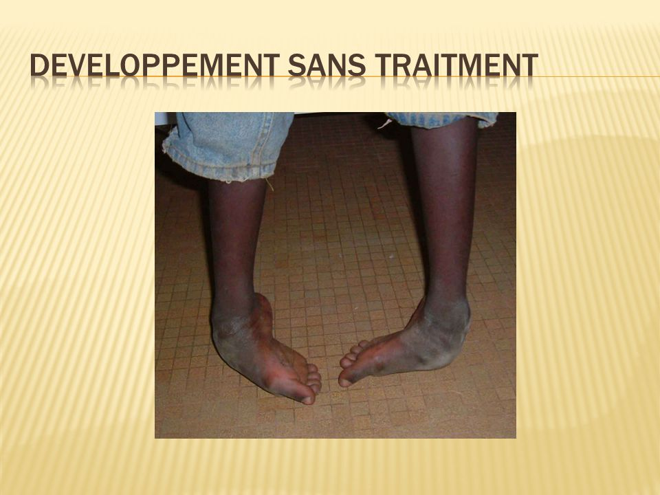 Developpement sans traitment