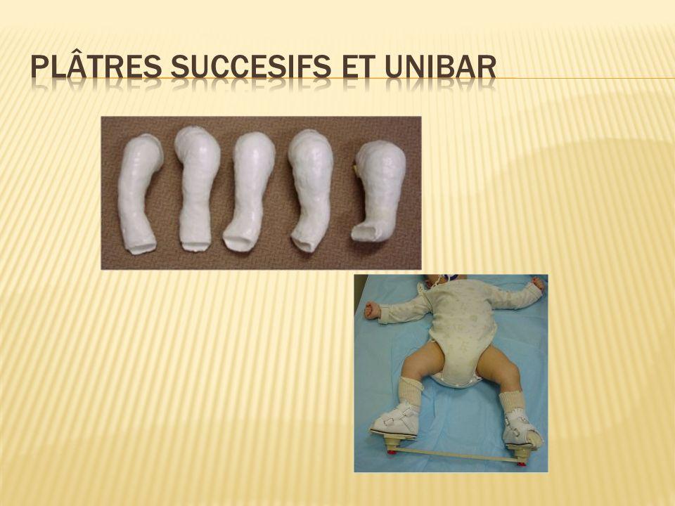 Plâtres succesifs et unibar