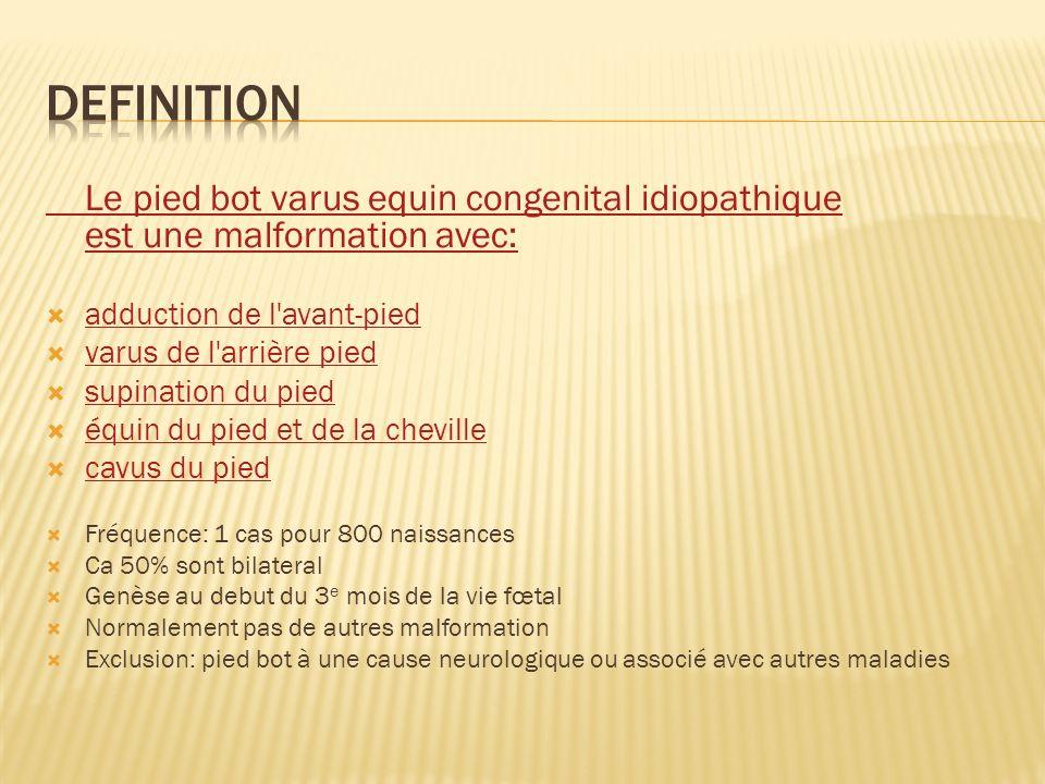 Definition Le pied bot varus equin congenital idiopathique est une malformation avec: adduction de l avant-pied.