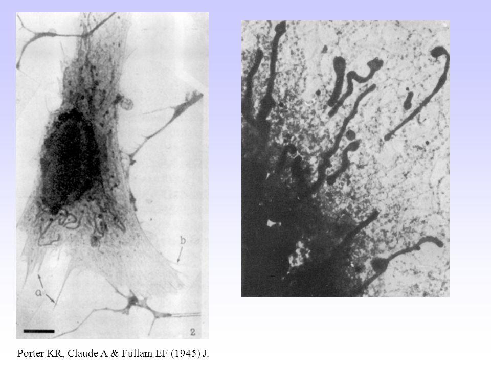 Porter KR, Claude A & Fullam EF (1945) J. Exp. Med. 81 : 233-246