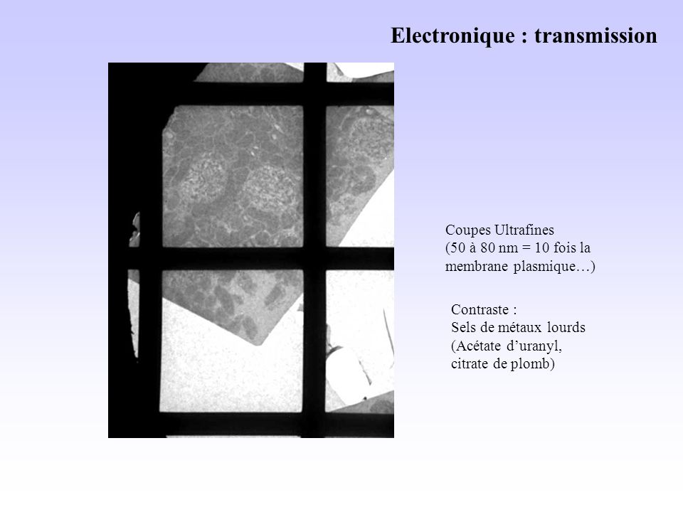 Electronique : transmission