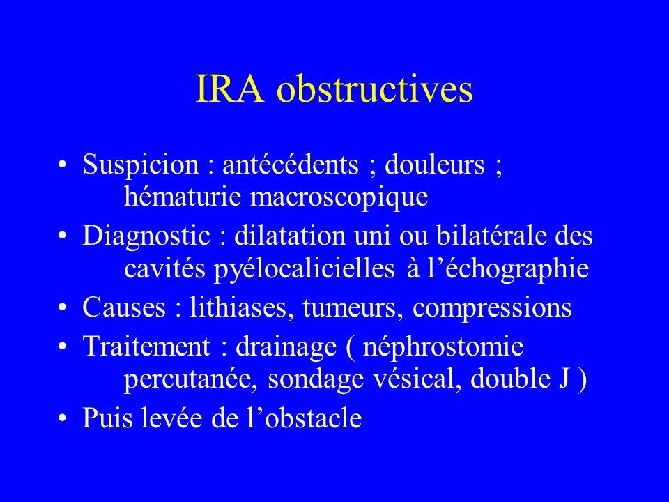 IRA obstructives Suspicion : antécédents ; douleurs ; hématurie macroscopique.
