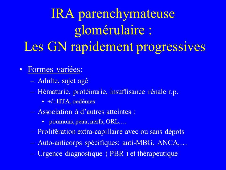 IRA parenchymateuse glomérulaire : Les GN rapidement progressives