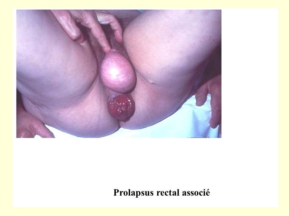 Prolapsus rectal associé