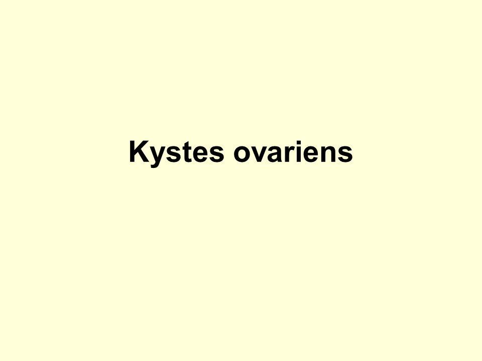 Kystes ovariens