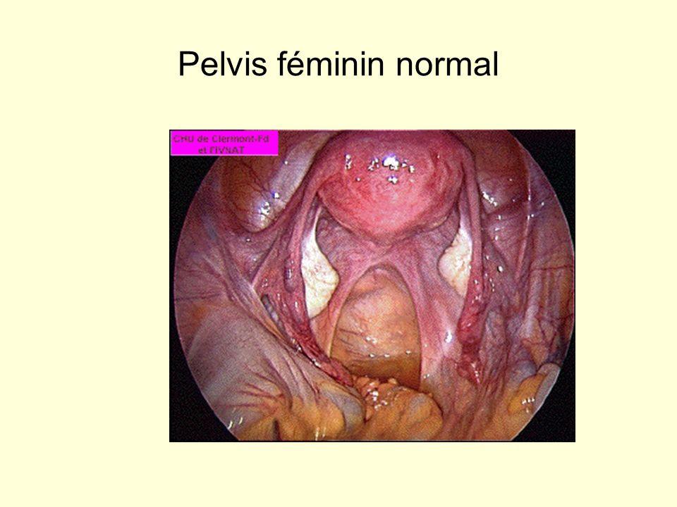 Pelvis féminin normal