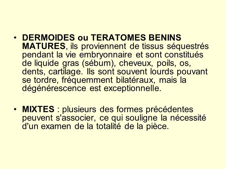 DERMOIDES ou TERATOMES BENINS MATURES, ils proviennent de tissus séquestrés pendant la vie embryonnaire et sont constitués de liquide gras (sébum), cheveux, poils, os, dents, cartilage. Ils sont souvent lourds pouvant se tordre, fréquemment bilatéraux, mais la dégénérescence est exceptionnelle.