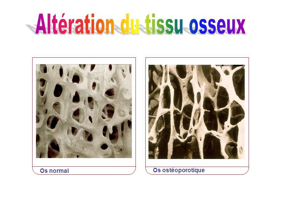 Altération du tissu osseux