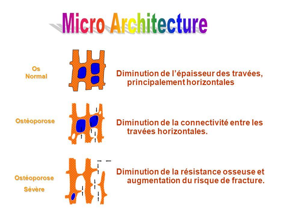 Micro ArchitectureDiminution de l'épaisseur des travées, principalement horizontales. Diminution de la connectivité entre les travées horizontales.