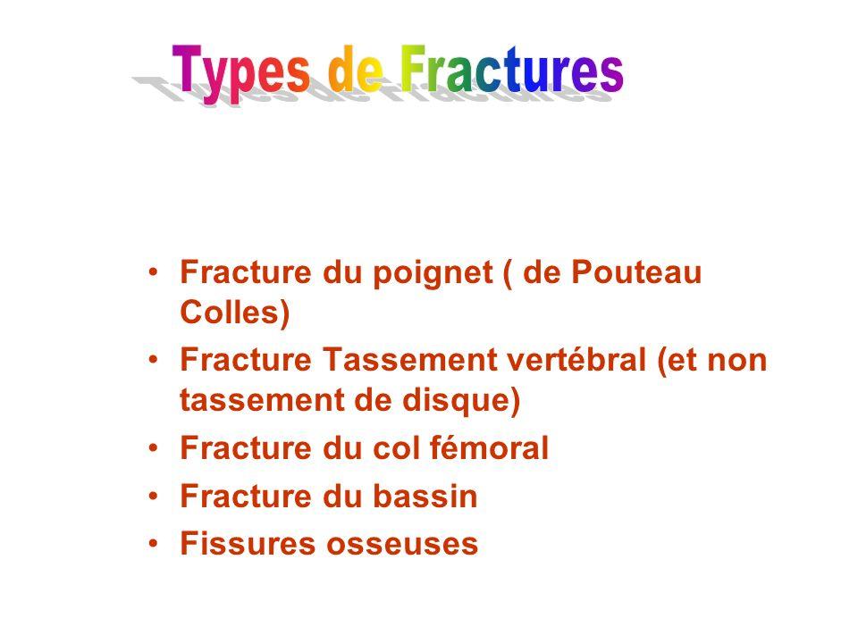 Types de Fractures Fracture du poignet ( de Pouteau Colles)