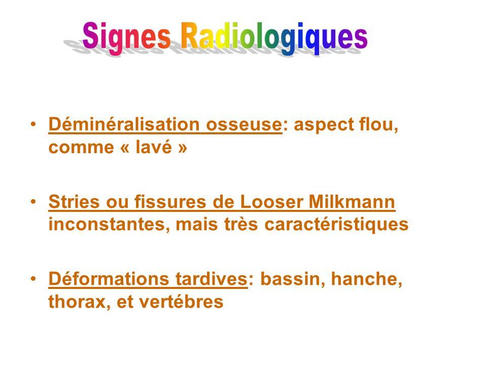 Signes RadiologiquesDéminéralisation osseuse: aspect flou, comme « lavé »