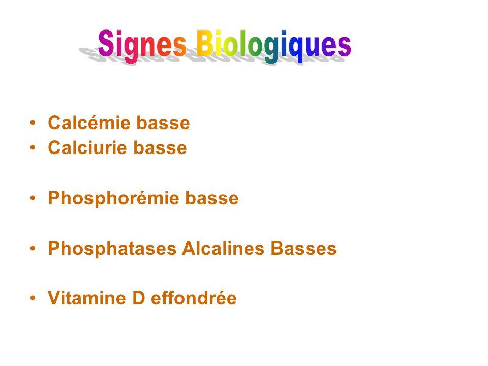 Signes Biologiques Calcémie basse Calciurie basse Phosphorémie basse