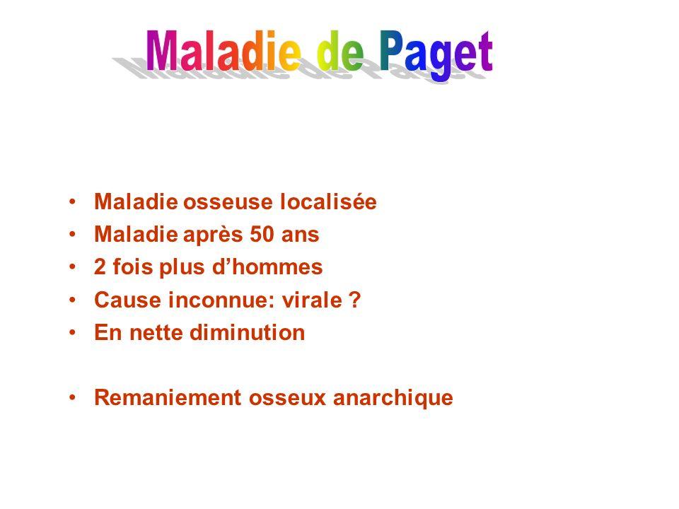 Maladie de Paget Maladie osseuse localisée Maladie après 50 ans