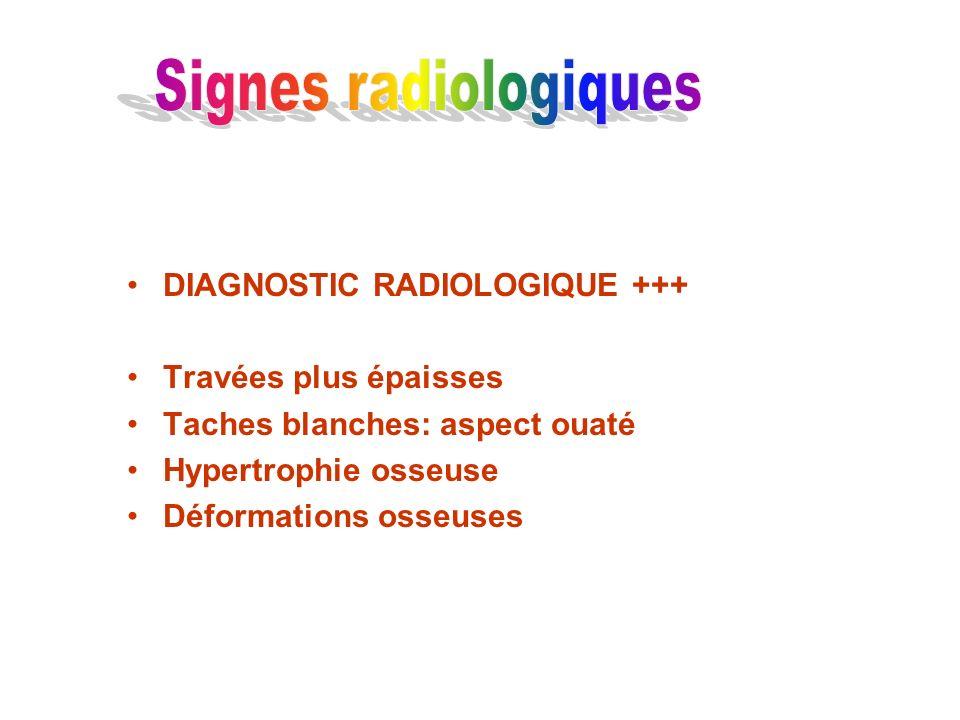 Signes radiologiques DIAGNOSTIC RADIOLOGIQUE +++ Travées plus épaisses