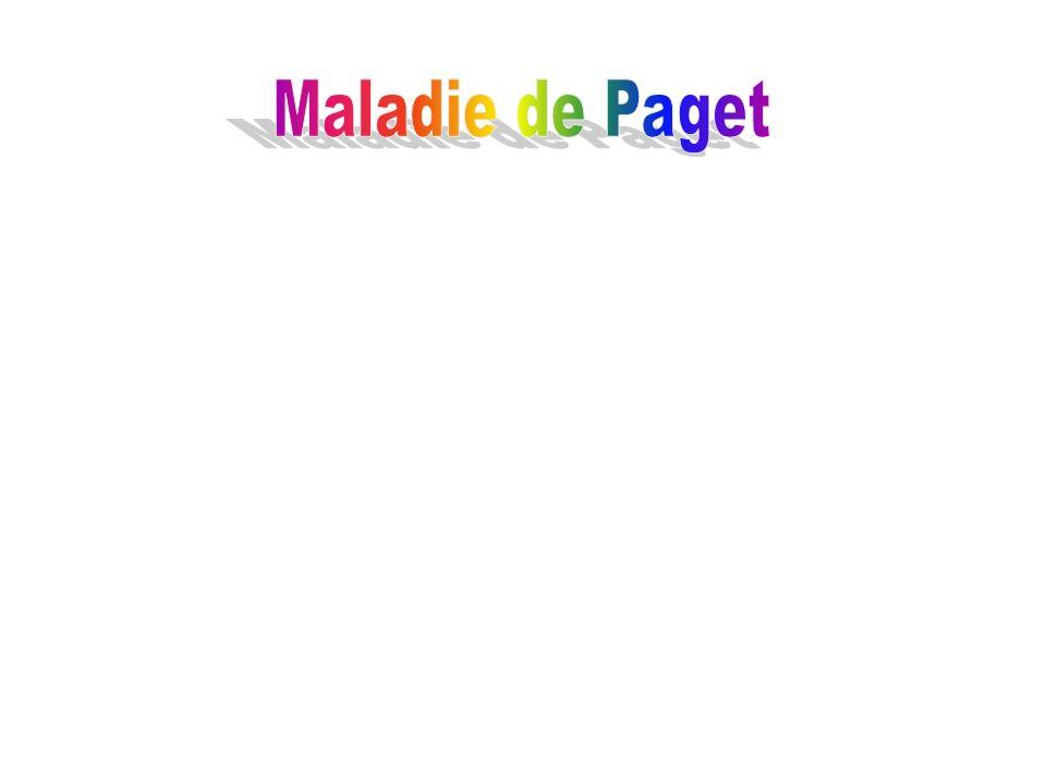 Maladie de Paget
