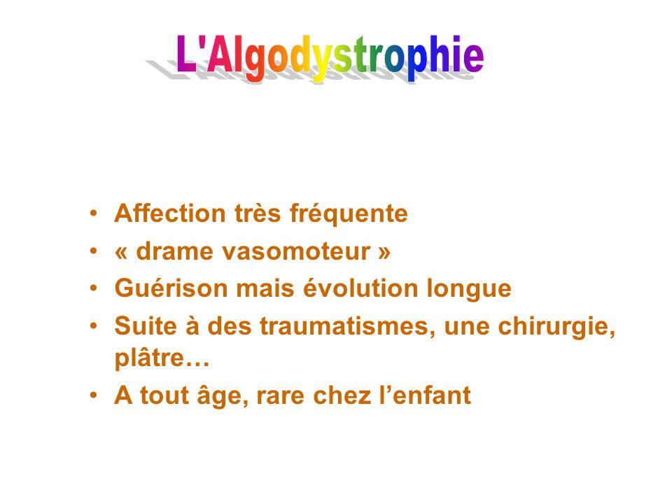 L Algodystrophie Affection très fréquente « drame vasomoteur »