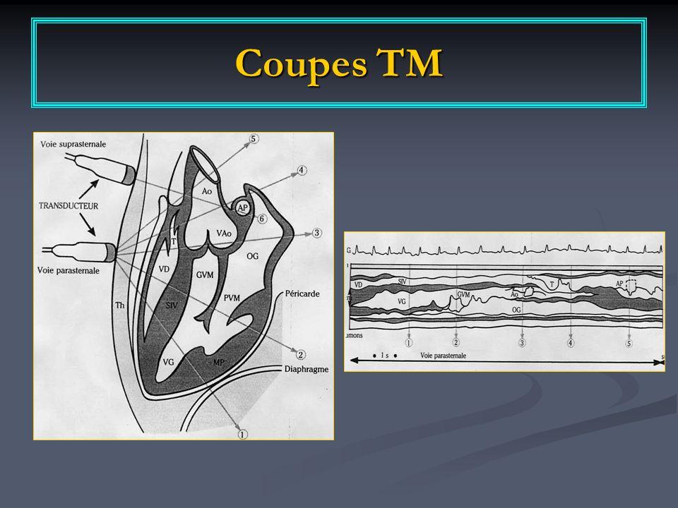 Coupes TM
