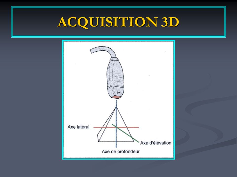 ACQUISITION 3D