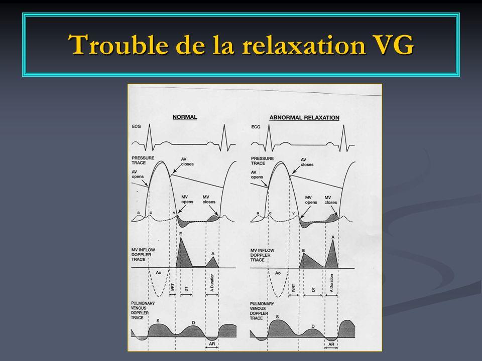 Trouble de la relaxation VG