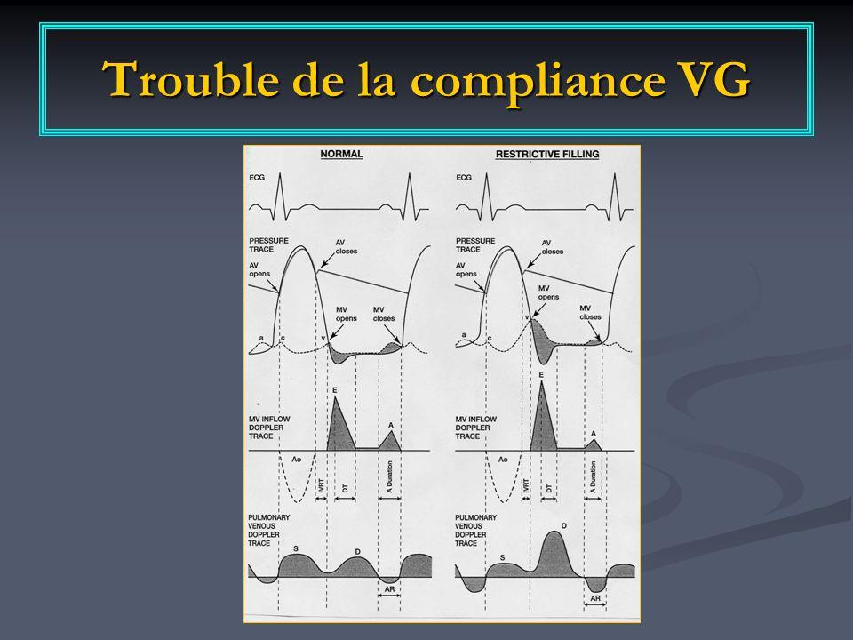 Trouble de la compliance VG