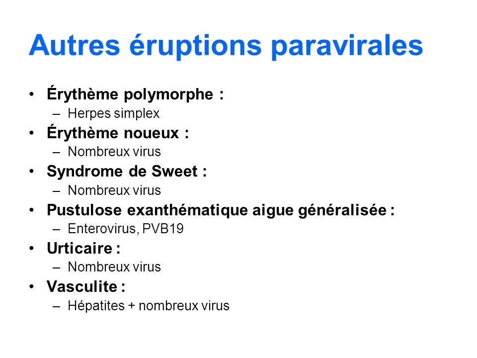 Autres éruptions paravirales