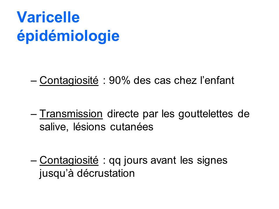 Varicelle épidémiologie