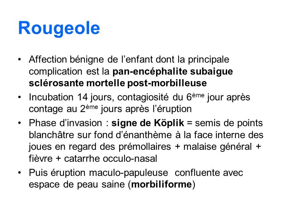 RougeoleAffection bénigne de l'enfant dont la principale complication est la pan-encéphalite subaigue sclérosante mortelle post-morbilleuse.