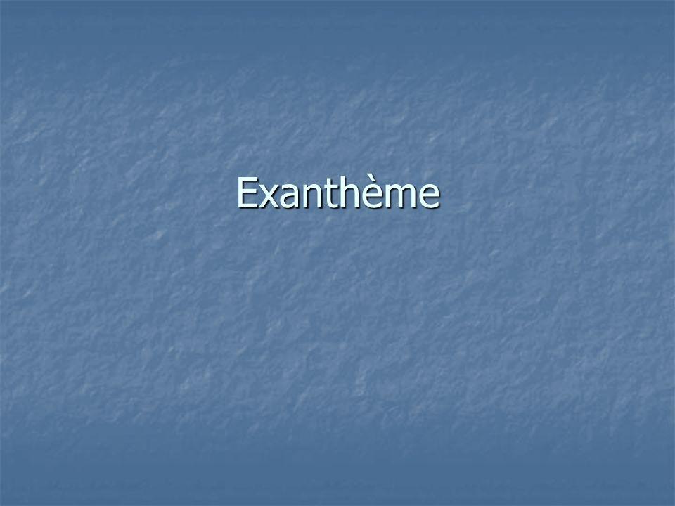 Exanthème