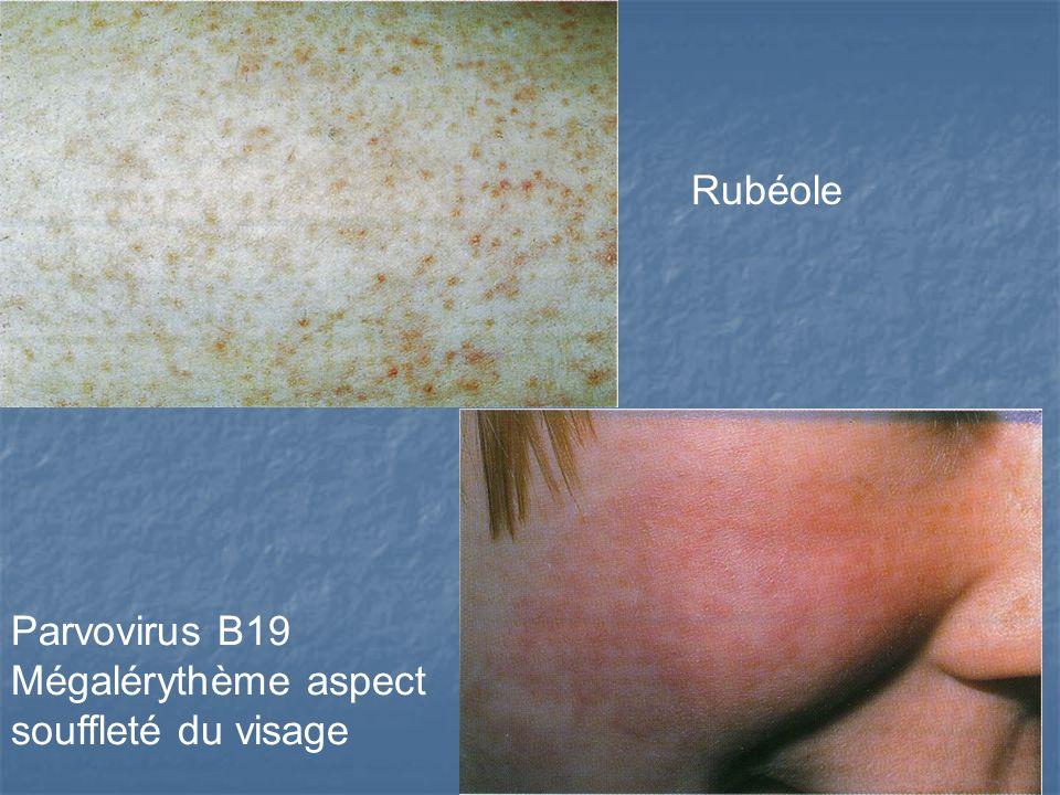 Rubéole Parvovirus B19 Mégalérythème aspect souffleté du visage
