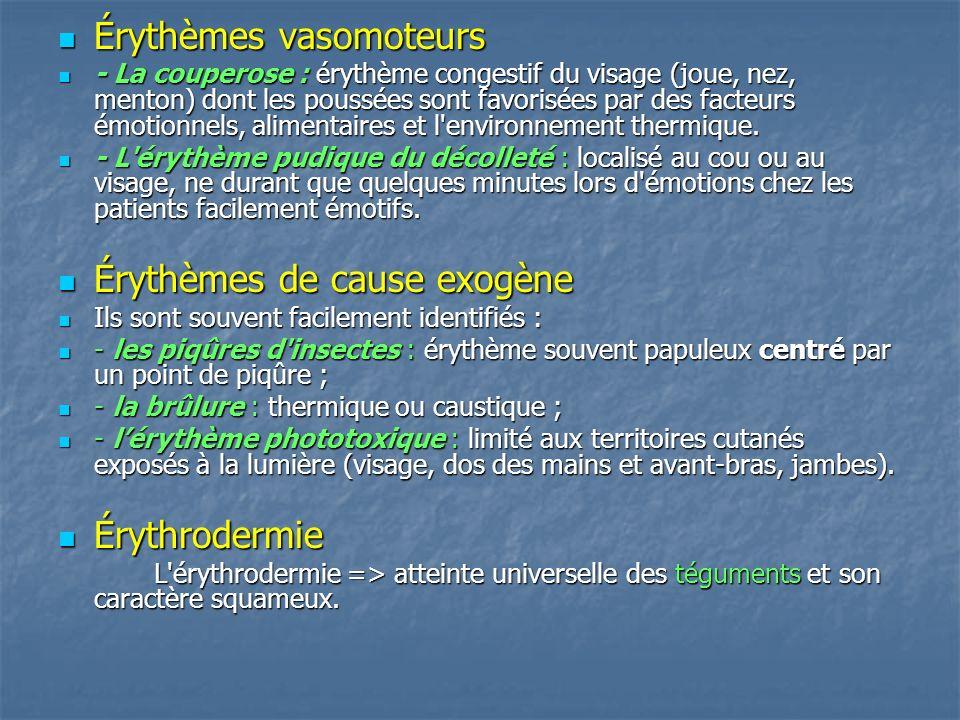 Érythèmes vasomoteurs