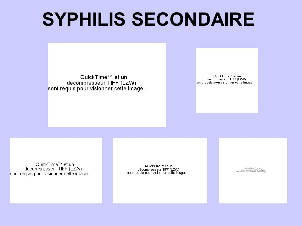 SYPHILIS SECONDAIRE