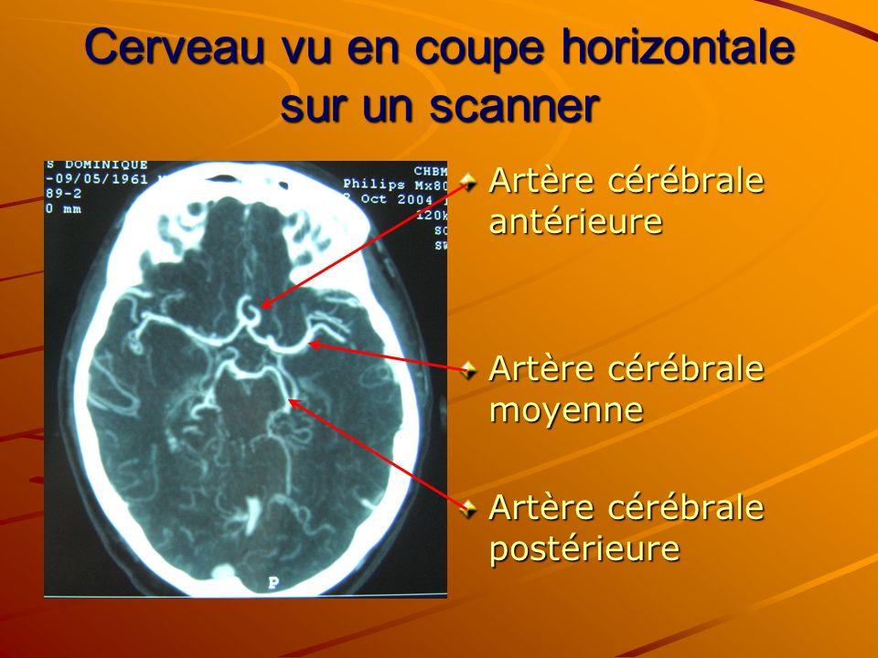 Cerveau vu en coupe horizontale sur un scanner