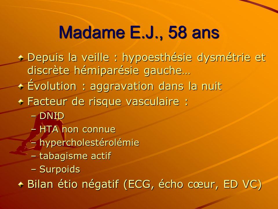 Madame E.J., 58 ans Depuis la veille : hypoesthésie dysmétrie et discrète hémiparésie gauche… Évolution : aggravation dans la nuit.
