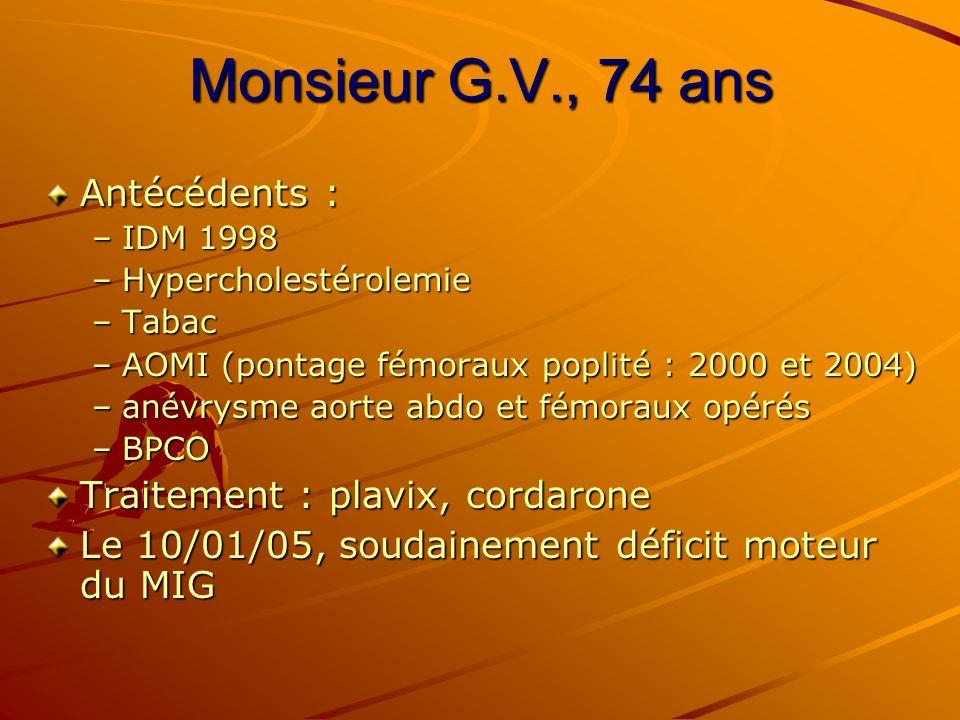 Monsieur G.V., 74 ans Antécédents : Traitement : plavix, cordarone
